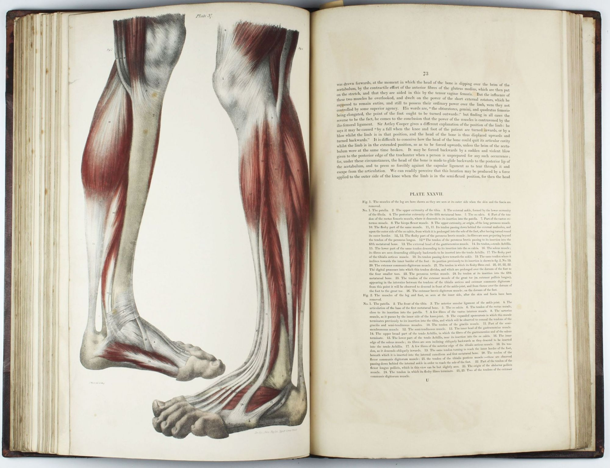 A Series Of Anatomical Plates In Lithography With References And