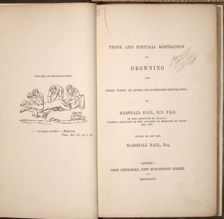 Prone and Postural Respiration in Drowning and Other Forms of Apnoea or Suspended Respiration... Edited by His Son, Marshall Hall. Marshall HALL.