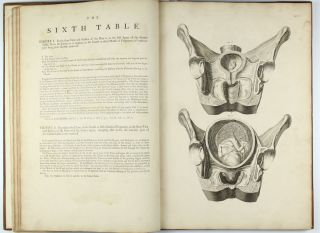 A Sett of Anatomical Tables, with Explanation and an Abridgement of the Practice of Midwifery, with a view to illustrate a treatise on that subject, and collection of cases.