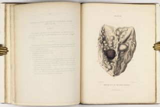 The Morbid Anatomy of the Human Brain; Illustrated by Coloured Engravings of the Most Frequent and Important Organic Diseases To Which that Viscous is Subject.