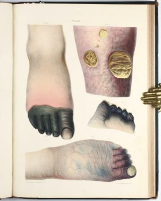 Pathological Anatomy. Illustrations of the Elementary Forms of Diseases.